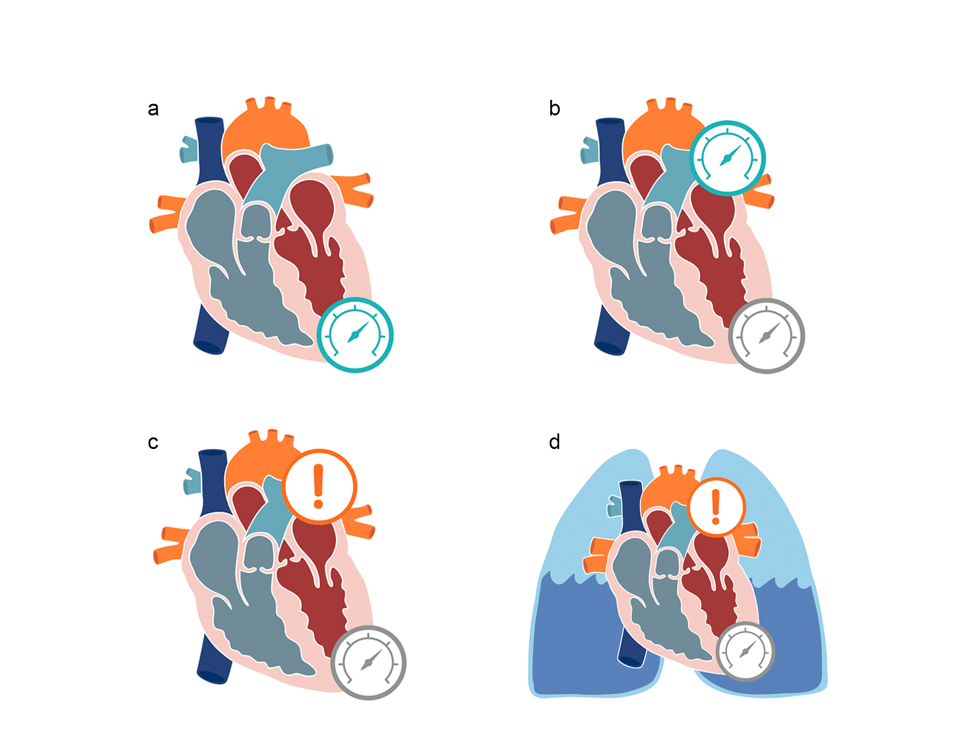 Series of three hearts with main vessels with pressure gauges showing pressure changes in acute cardiogenic pulmonary edema. Illustration.