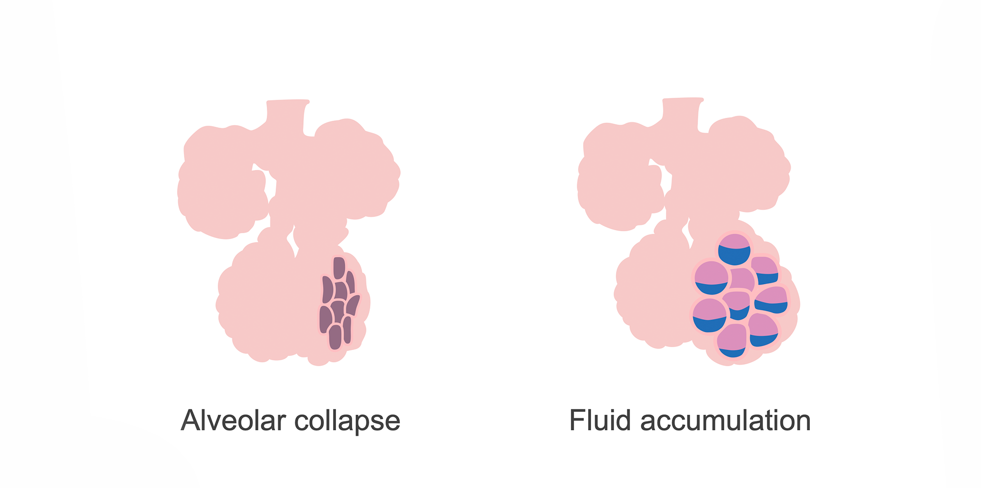 Alveoli showing collapse and fluid accumulation. Illustration.
