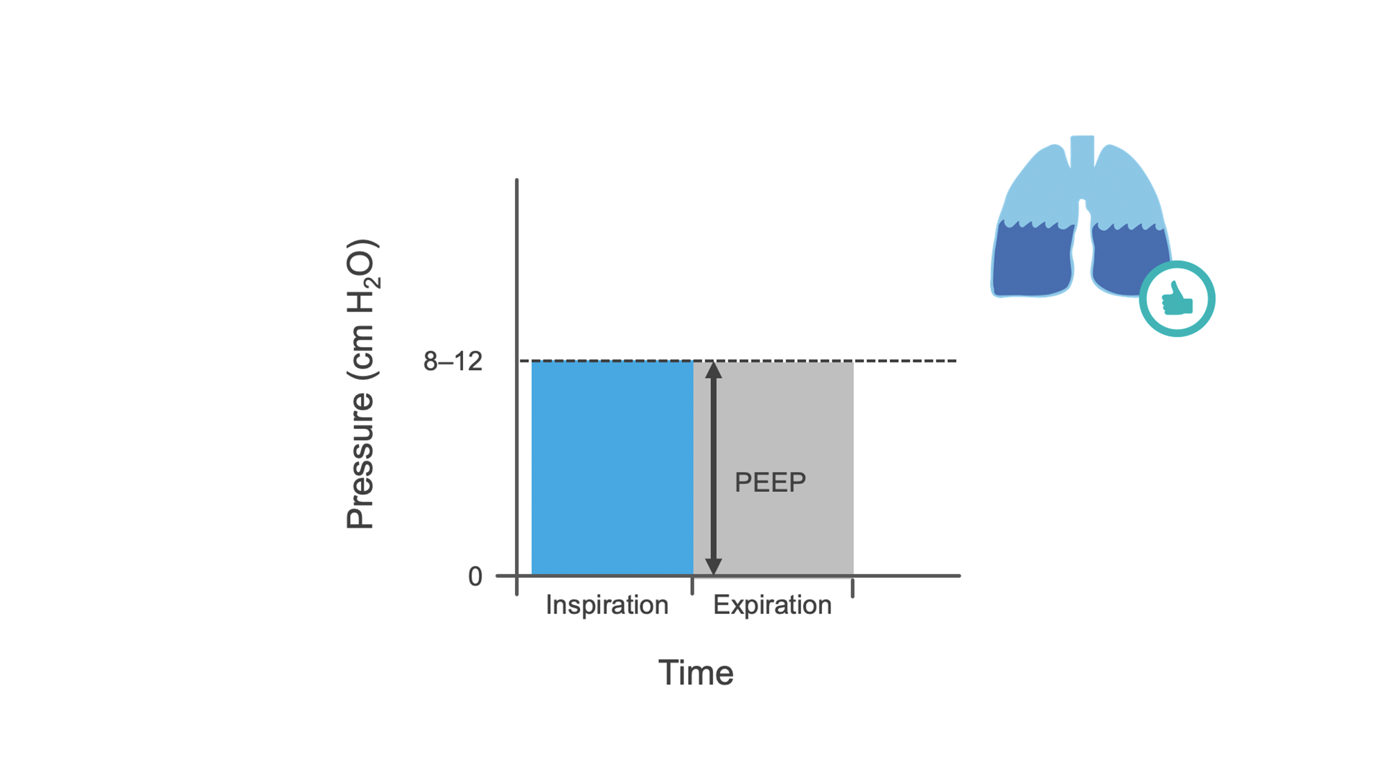 Graph of CPAP inspiration and expiration pressures with positive end expiratory pressure (PEEP).
