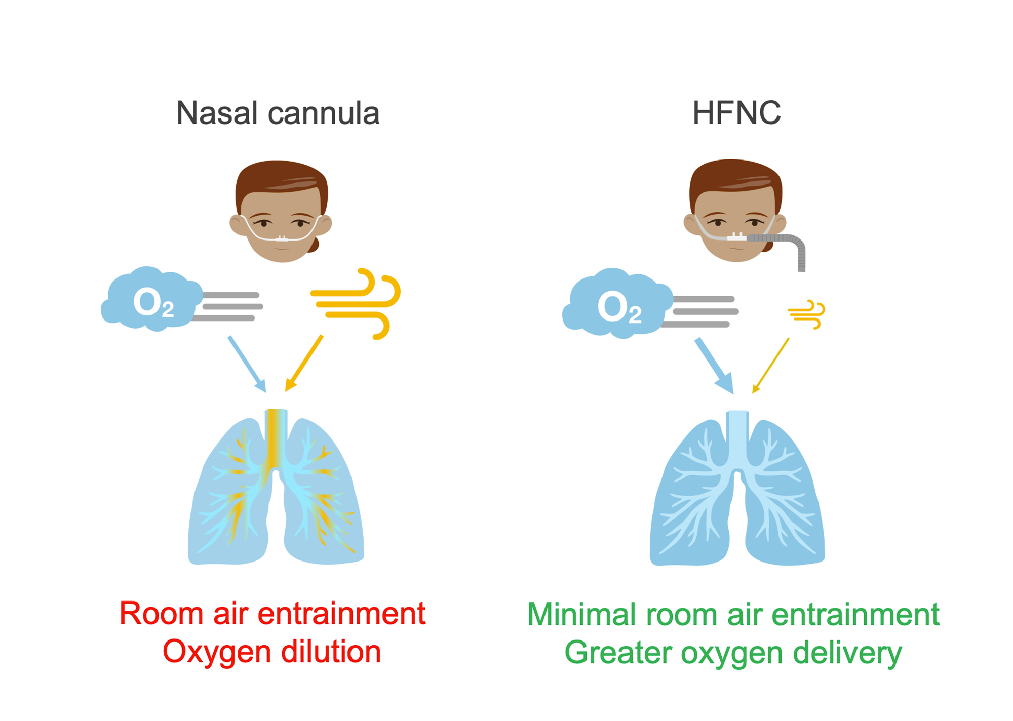 Two women: one with nasal cannula and one with larger tubing indicating high-flow nasal cannula (HFNC). Lungs showing difference in air flow in each condition. Illustration.