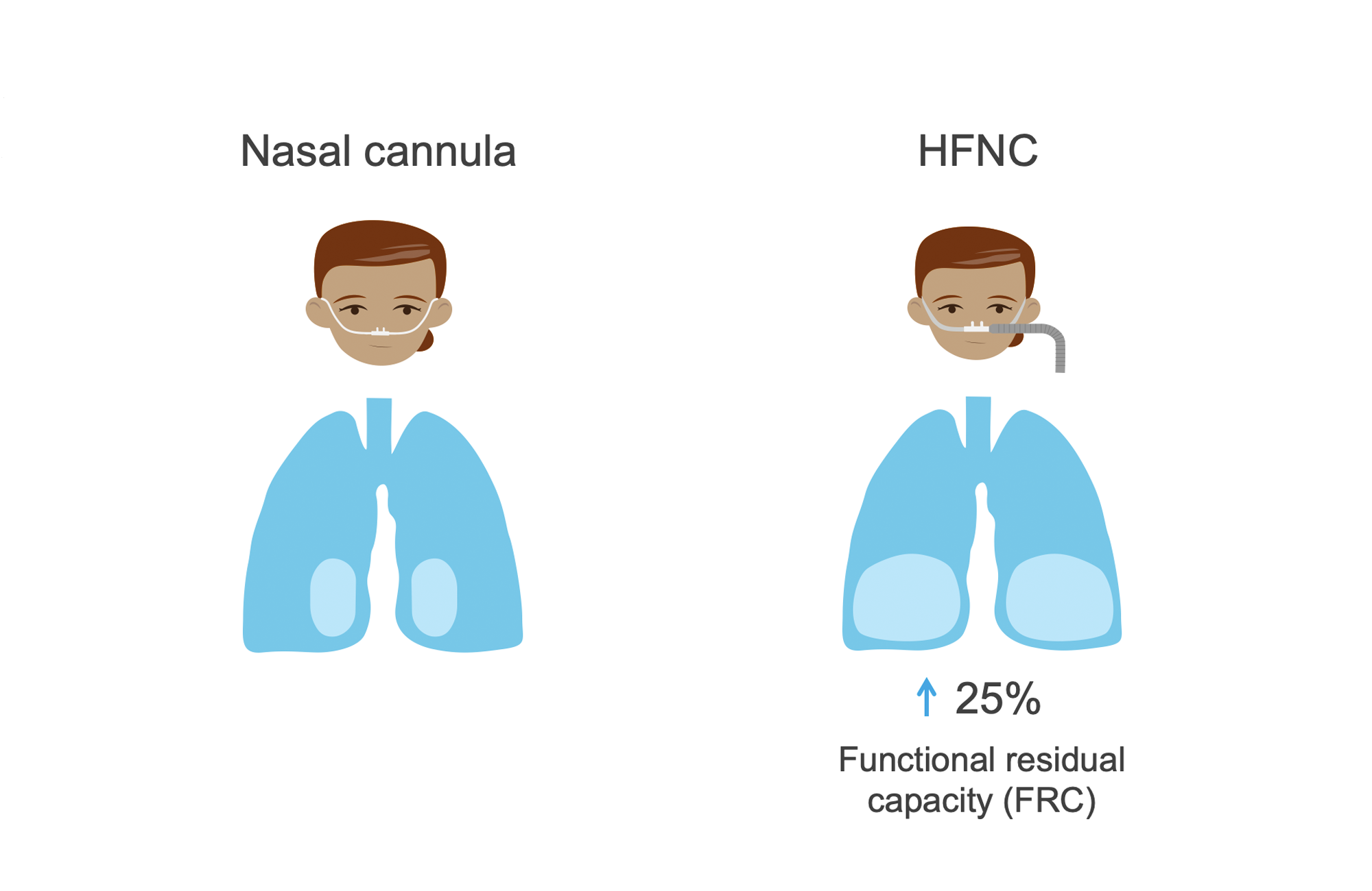Two women: one with nasal cannula and one with larger tubing indicating high-flow nasal cannula (HFNC). Lungs showing difference in functional residual capacity (FRC) in each condition. Illustration.