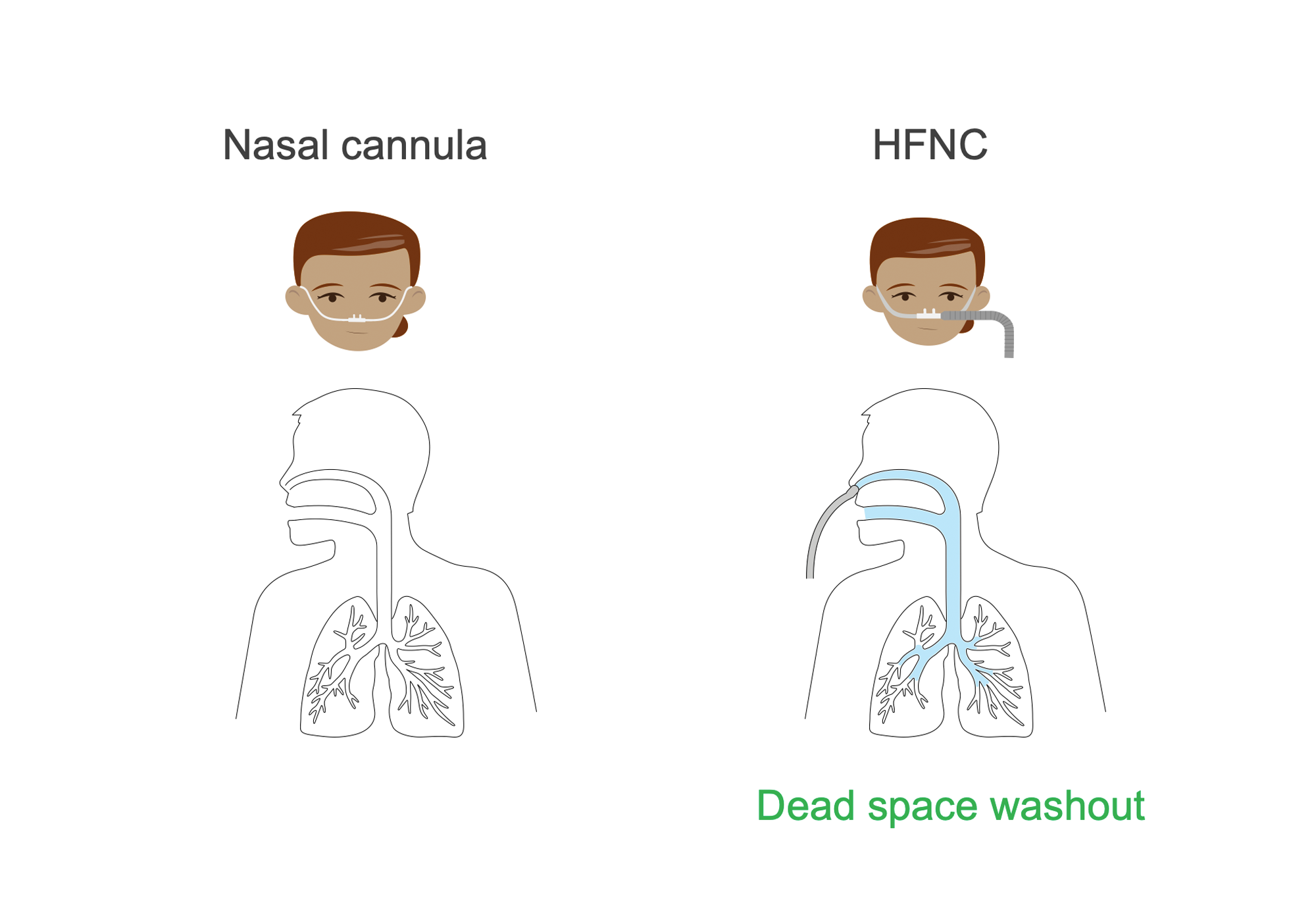 Two women: one with nasal cannula and one with larger tubing indicating high-flow nasal cannula (HFNC). Lungs showing presence of dead space washout in HFNC condition. Illustration.