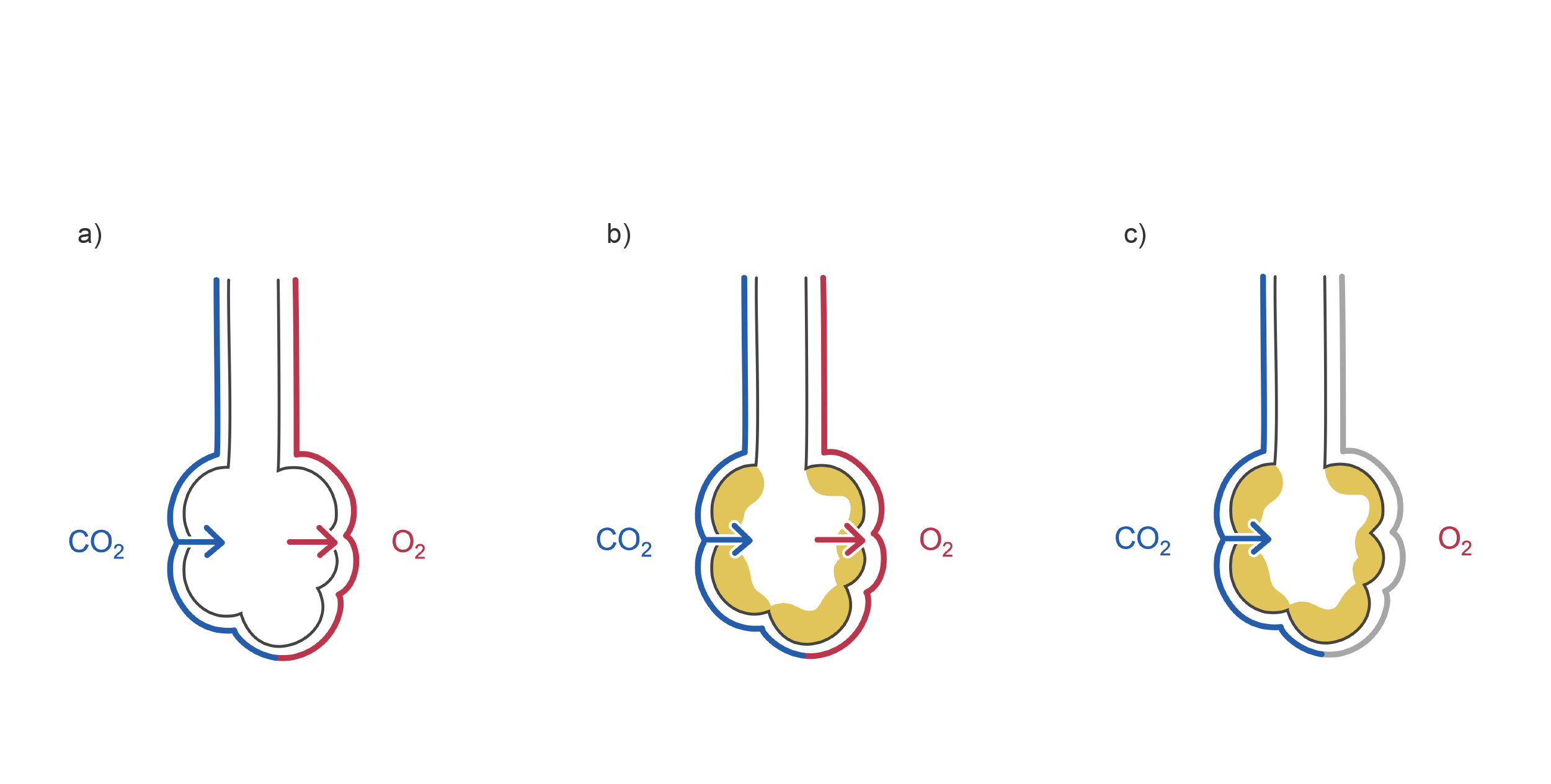 Alveoli with pus accumulation and reduced oxygen in COVID-19. Illustration.