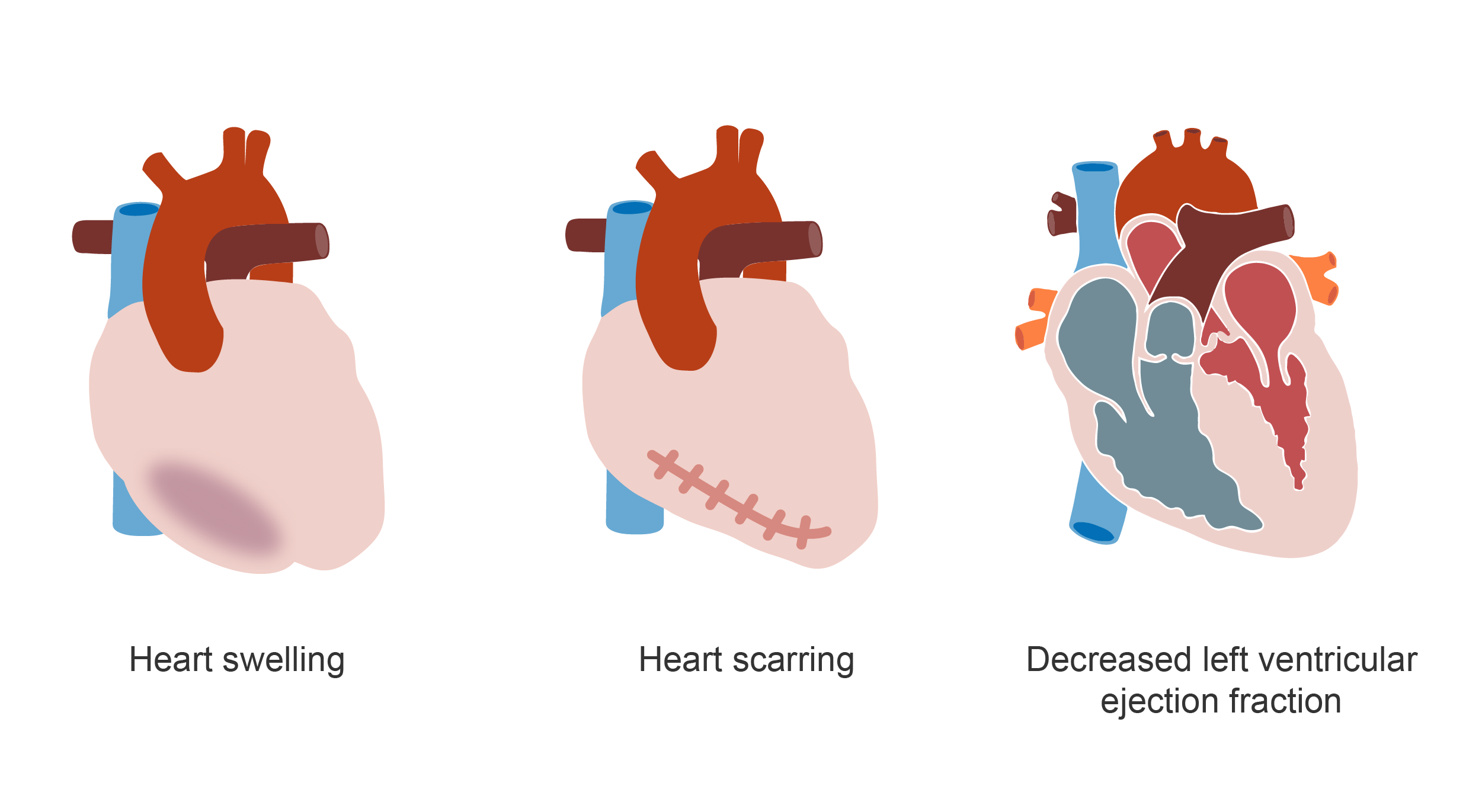 Three hearts showing swelling, scarring, and decreased left ventricular ejection fraction. Illustration.