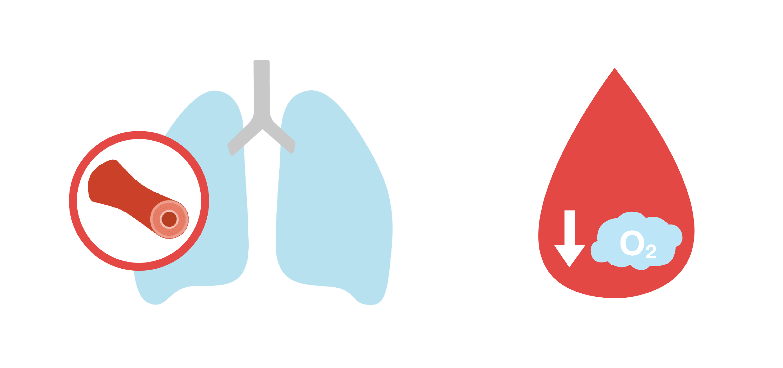 Lungs with constricted blood vessel and blood droplet with low oxygen. Illustration.