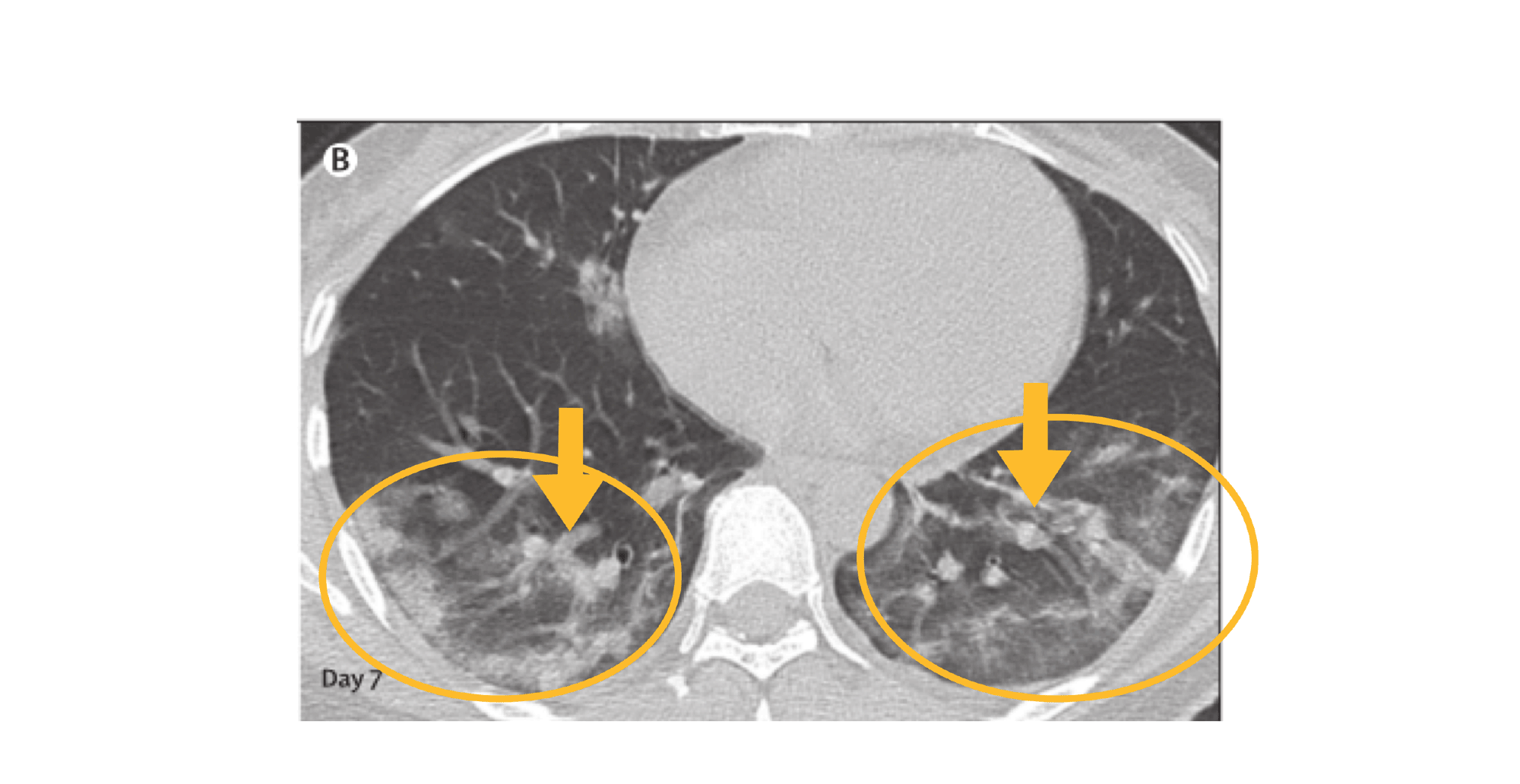 . COVID-19 CT image of chest in cross section with large heterogeneous bilateral lung lesions and internal bronchovascular enlargement.