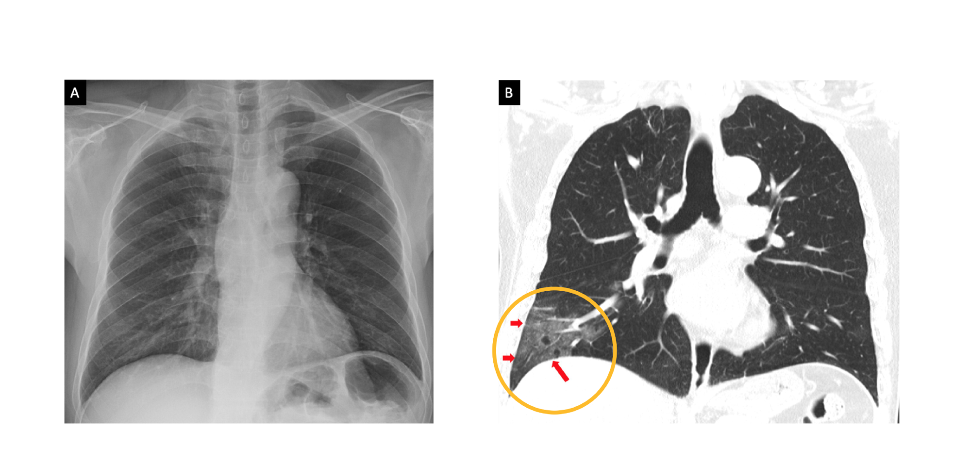 Normal chest radiograph. Chest CT with ground-glass opacity in COVID-19.