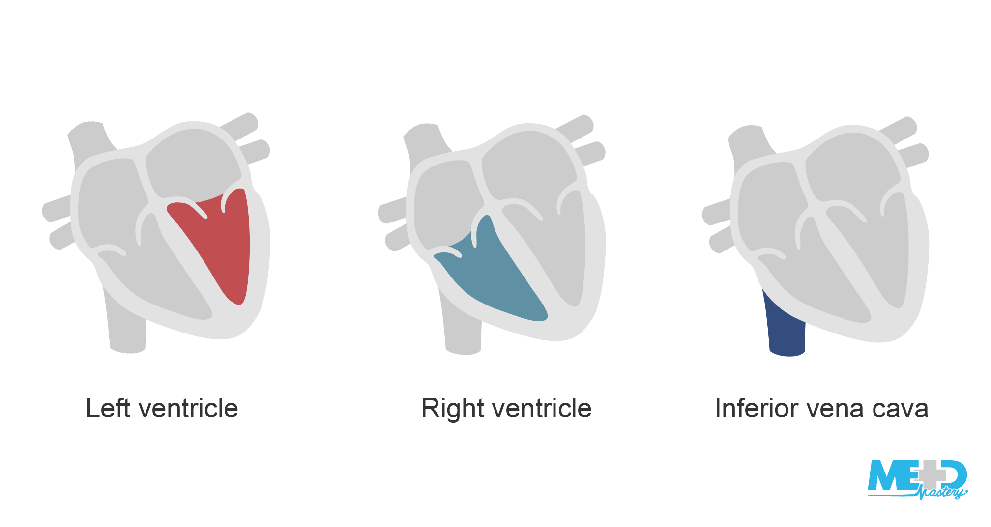 Multi-component illustration of heart with left ventricle, right ventricle, and inferior vena cava highlighted.