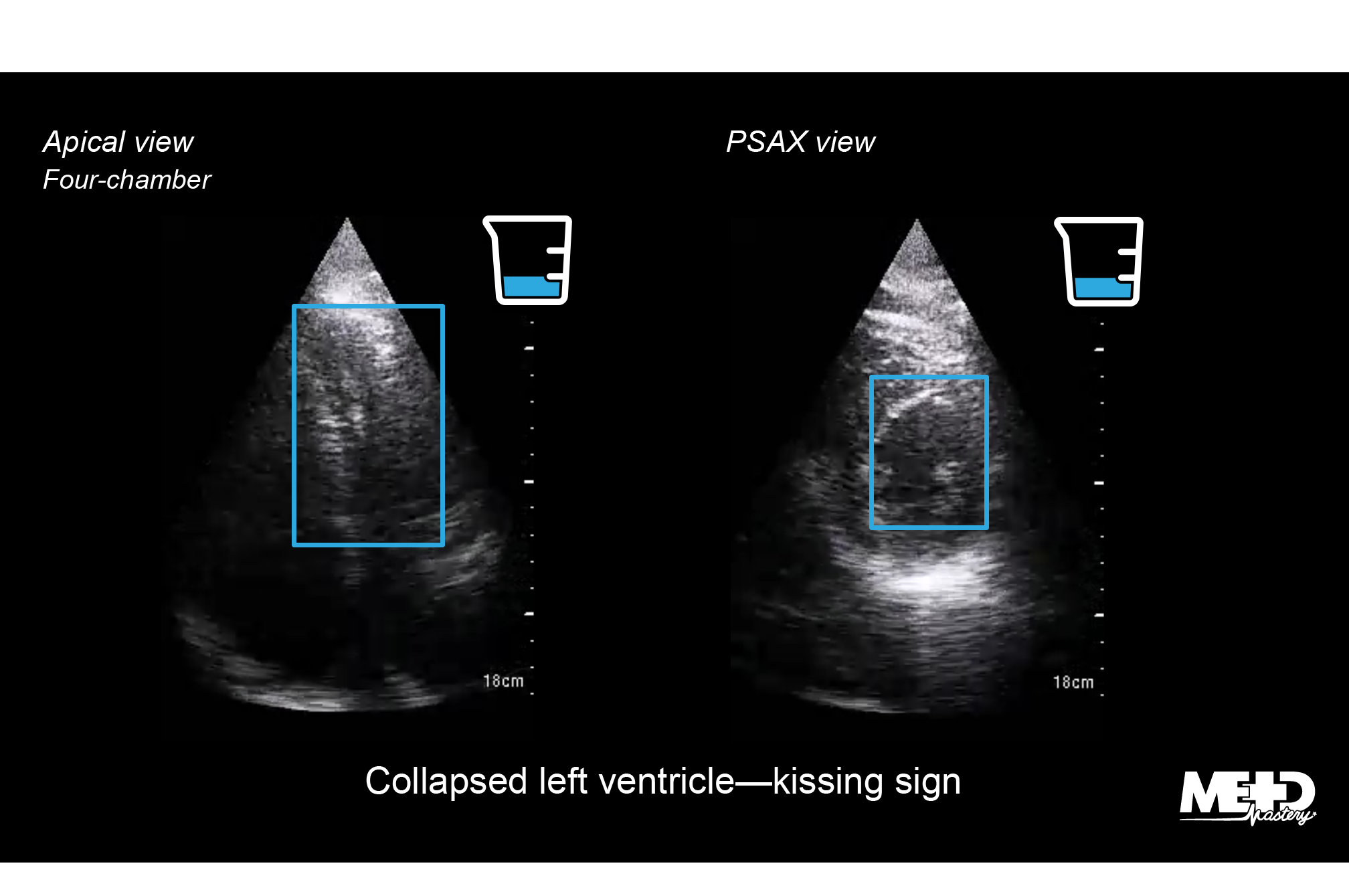 Left ventricle echocardiogram highlighting small ventricular cavity size and hyperdynamic left ventricular systolic function in patients with COVID-19.