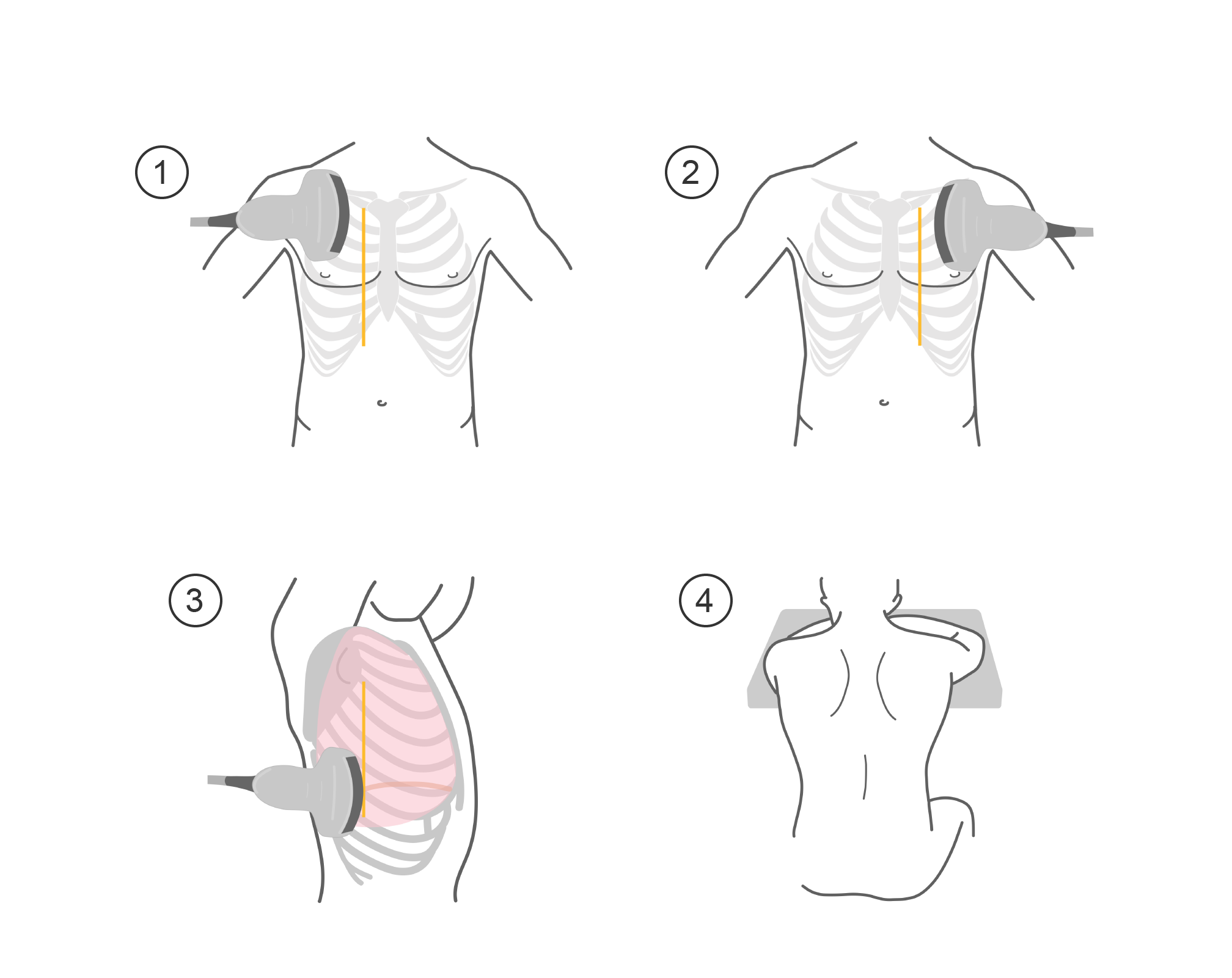 Step-by-step illustration of a patient being scanned with a transducer on the midclavicular and midaxillary lines, and posteriorly.