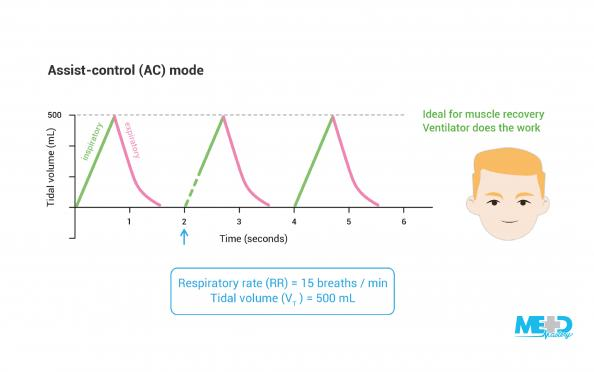 Happy patient and graph of tidal volume changes over time in assist-control mode mechanical ventilation. Illustration.