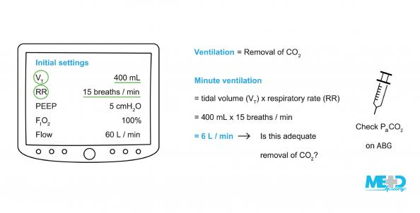 G12A06F02-assessing-adequate-ventilation-PACO2