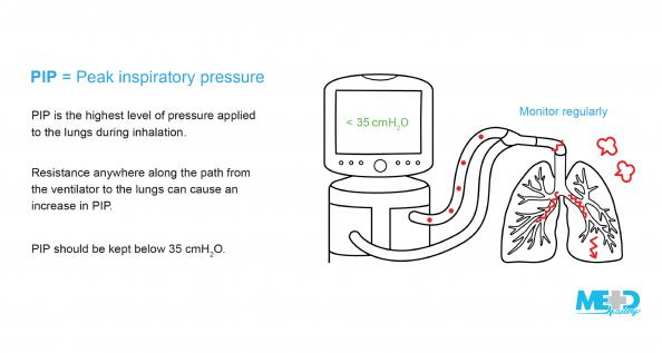 Ventilator with lungs and text points about peak inspiratory pressure.