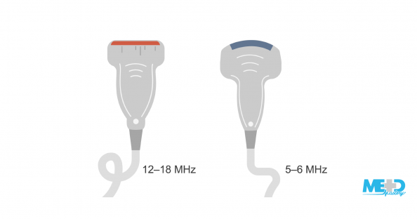 A 12–18 MHz linear probe and a 5–6 MHz curved probe for the duplex ultrasound. Illustration.