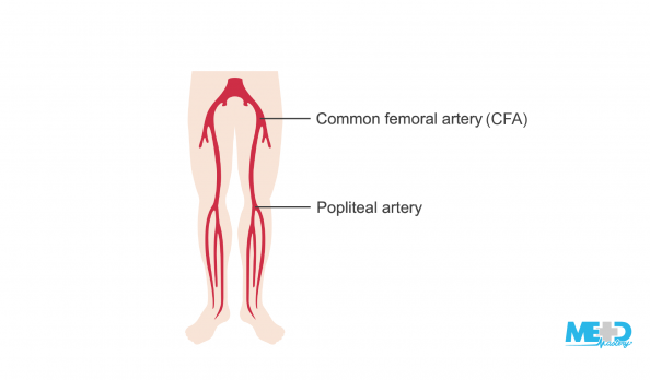 Lower leg arteries with common femoral artery and popliteal artery labeled. Illustration.