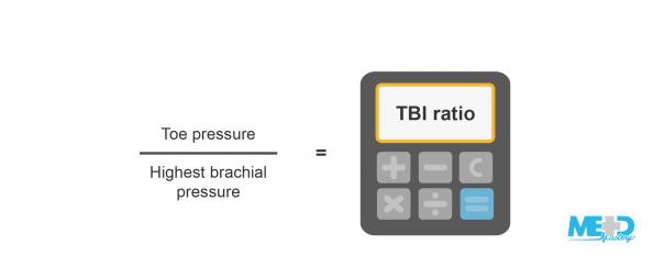 Calculator with toe-brachial index (TBI) ratio and formula showing toe pressure divided by highest brachial pressure equals TBI ratio. Illustration.