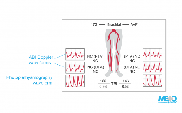 ABI report from a patient with noncompressible pedal pulses showing multiphasic ankle-brachial index (ABI) Doppler waveforms and high amplitude photoplethysmography waveforms.