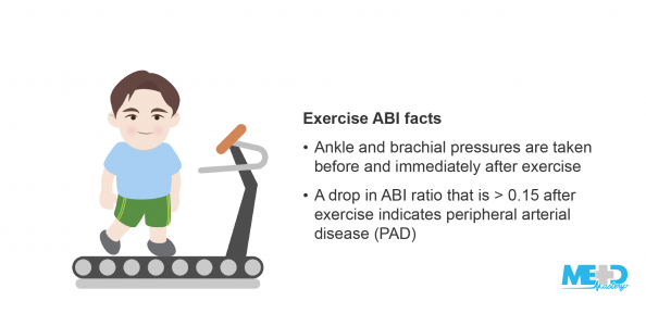 Male patient on a treadmill beside list of exercise ankle-brachial index (ABI) facts. Illustration.