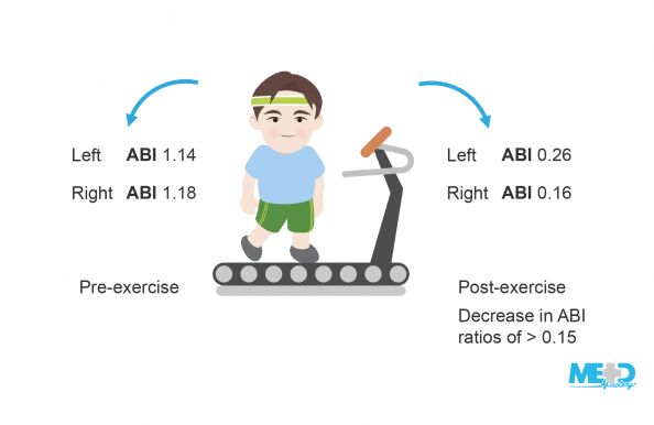 Patient on a treadmill with pre- and post-exercise ankle-brachial index (ABI) ratios, where the post-exercise ratios dropped by more than 0.15. Illustration.