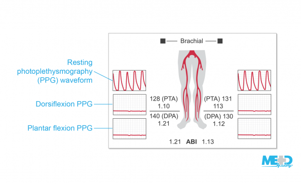Toe-brachial index (TBI) report showing normal resting photoplethysmography (PPG) waveforms and flat waveforms with dorsiflexion and plantar flexion. Illustration.