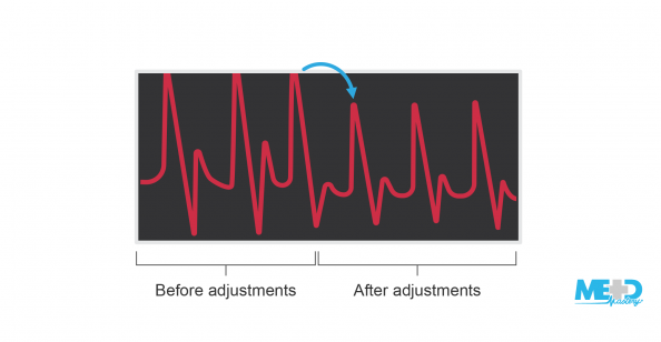 Ankle-brachial index (ABI) machine screen showing waveforms before and after adjusting position and size. Illustration.