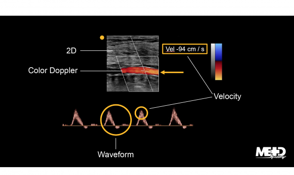 Duplex ultrasound screen image showing two-dimensional (2D) black and white imaging, color flow, waveforms, and velocity.