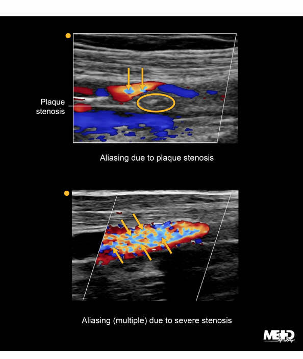 Color flow duplex Doppler ultrasound images. Image of two areas of aliasing or brightness and plaque stenosis. Image of multiple areas of color aliasing and severe stenosis.