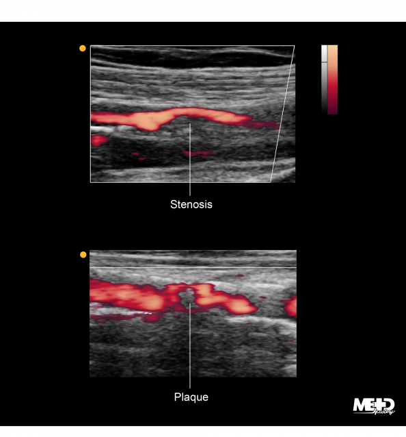 Power Doppler duplex ultrasound images showing blood flow through a tight area of stenosis and flow around plaque.