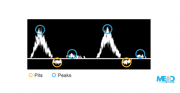 Triphasic duplex waveforms with pits and peaks highlighted. Illustration.