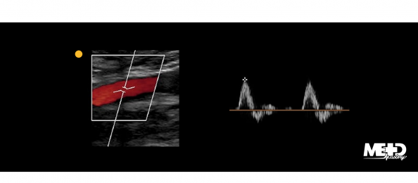 Color flow duplex ultrasound image and triphasic waveforms at the common femoral artery. Ultrasound image.