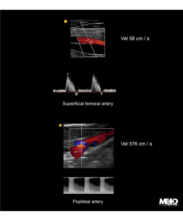 Color flow duplex and multiphasic waveforms at the superficial femoral artery (SFA). Abnormal color flow duplex and intra-stenosis waveforms at the popliteal artery. Ultrasound images.