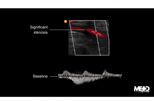 Monophasic duplex waveforms distal to significant stenosis with phasic vein Doppler interference. Ultrasound image.