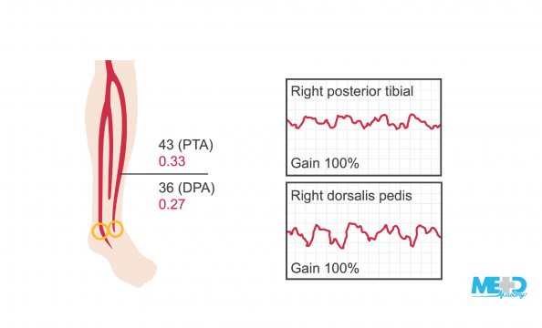 Leg with low ankle-brachial index (ABI) ratios beside dampened and monophasic waveforms. Illustration.