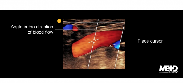 Color flow duplex ultrasound image demonstrating proper cursor angle and placement for capturing duplex velocities.