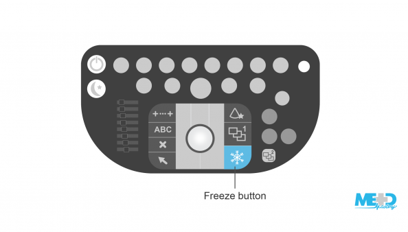 the keyboard. <alt text>A duplex ultrasound keyboard showing the location of the freeze button. Illustration.