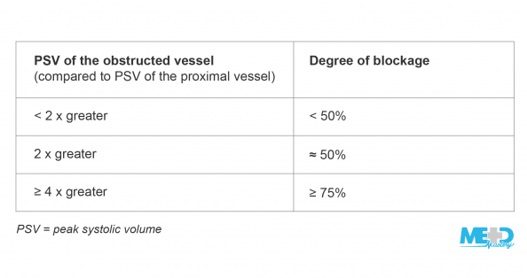 Table highlighting the degree of blockage across peak systolic velocity (PSV) within stenosis and PSV proximal to stenosis.