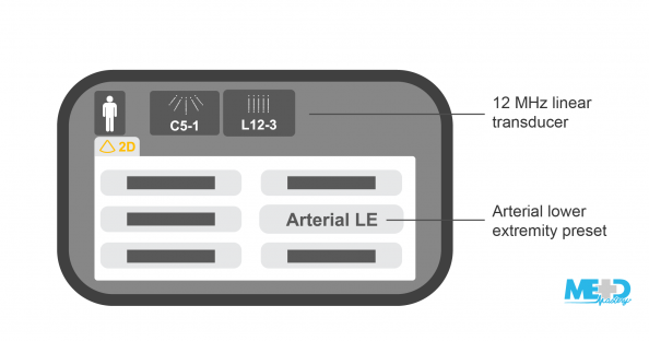 Duplex ultrasound machine display with 12 MHz linear transducer and arterial lower extremity preset highlighted. Illustration.