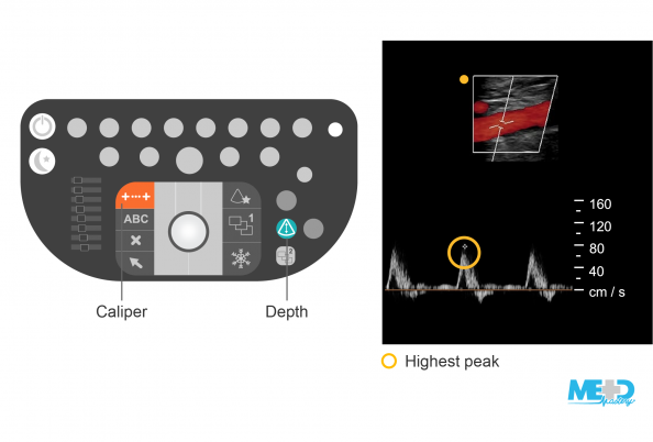 Duplex ultrasound machine keyboard illustration with caliper and depth buttons highlighted. Ultrasound image showing a color flow duplex with waveforms.