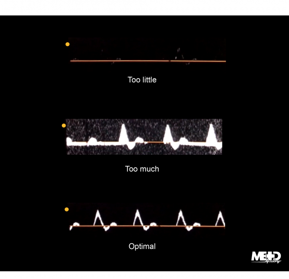 Arterial ultrasound Doppler waveforms with too little, too much, and optimal Doppler gain. Ultrasound images.