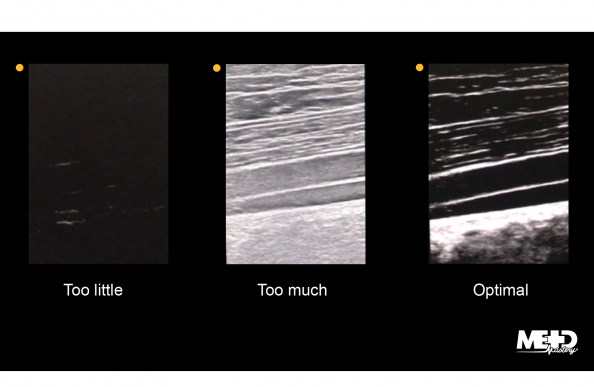 Duplex ultrasound with too little, too much, and optimal two-dimensional gain. Ultrasound images.