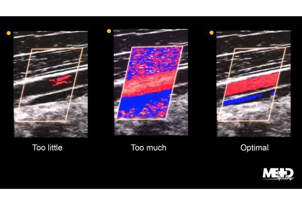 Color flow duplex ultrasound with too little, too much, and optimal color gain. Ultrasound images.