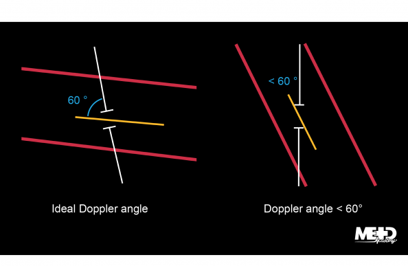 Duplex ultrasound cursor showing the ideal angle 60° and a less than 60° angle. Illustration.