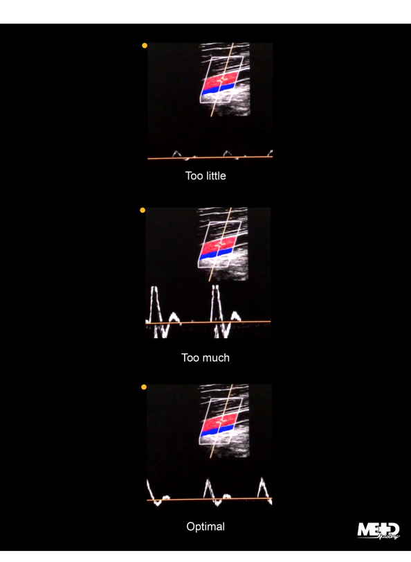 Color flow duplex ultrasound with pulsed-wave adjustments resulting in waveforms that are too small, too large, and optimal. Ultrasound image.