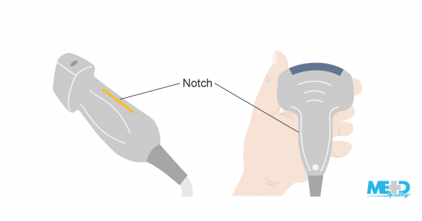 Duplex ultrasound probe with orientation notch. Hand holding probe with the notch oriented towards the thumb side of hand. Illustration.