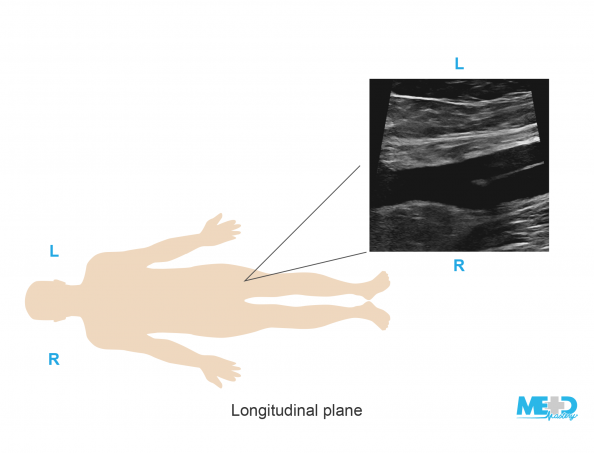 Illustration of patient orientation for a duplex ultrasound image in the longitudinal plane.