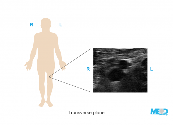 Illustration of patient orientation for a duplex ultrasound image in the transverse view.