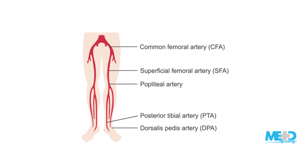 A patient's legs with the lower extremities arteries highlighted and labeled. Illustration.