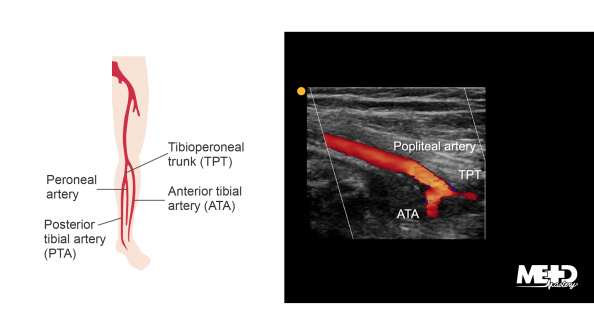 Lower leg with labels on anterior tibial artery (ATA), tibioperoneal trunk (TPT), peroneal artery, and posterior tibial artery (PTA). Ultrasound image of the popliteal artery branching into the ATA and TPT.