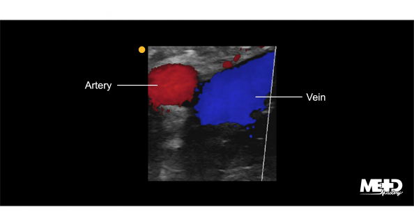 Red artery and blue vein on color flow duplex. Ultrasound image.