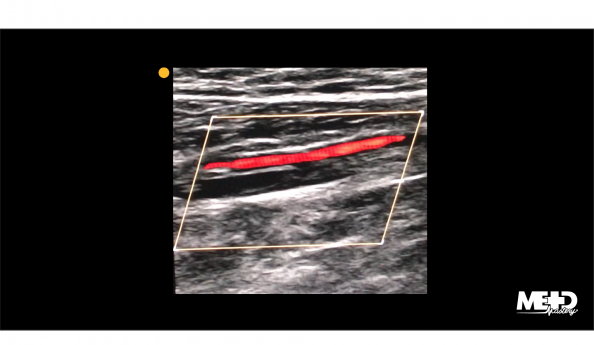 Posterior tibial artery (PTA) on color flow duplex ultrasound in a longitudinal view. Image.